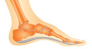 Chinelo Ortopédico - Cavo